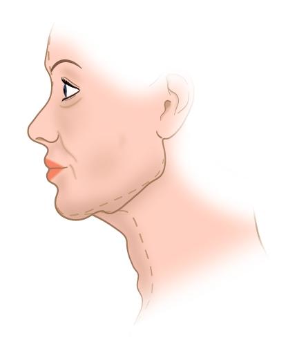 Старение лица и шеи