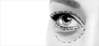 Блефаропластика: возможные негативные последствия операции