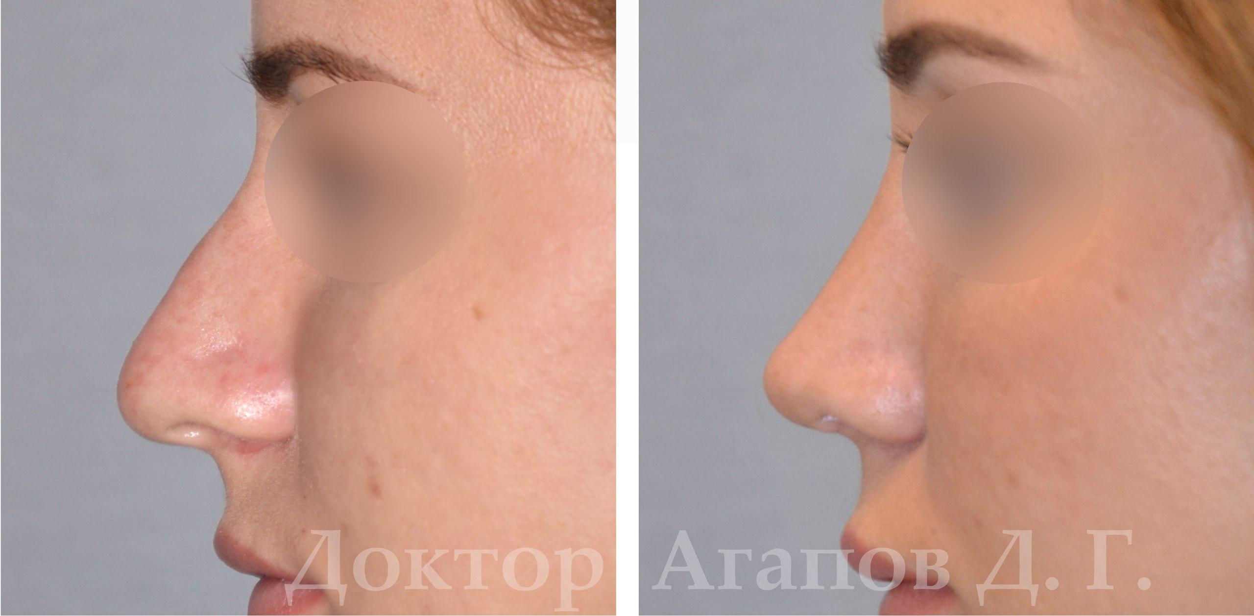 Комбинированная ринопластика фото до и после