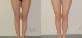 Пациентка среднего роста, 33 года. Обратилась к пластическому хирургу с выраженной недостаточностью объема внутренней части голени. Кроме того, у девушки отмечалась короткая внутренняя головка икроножных мышц. Хирургом была выполнена круропластика, в ходе которой с помощью симметричных имплантов Eurosilicone объемом 110см3 был увеличен объем голеней. На фото результат операции спустя два месяца.