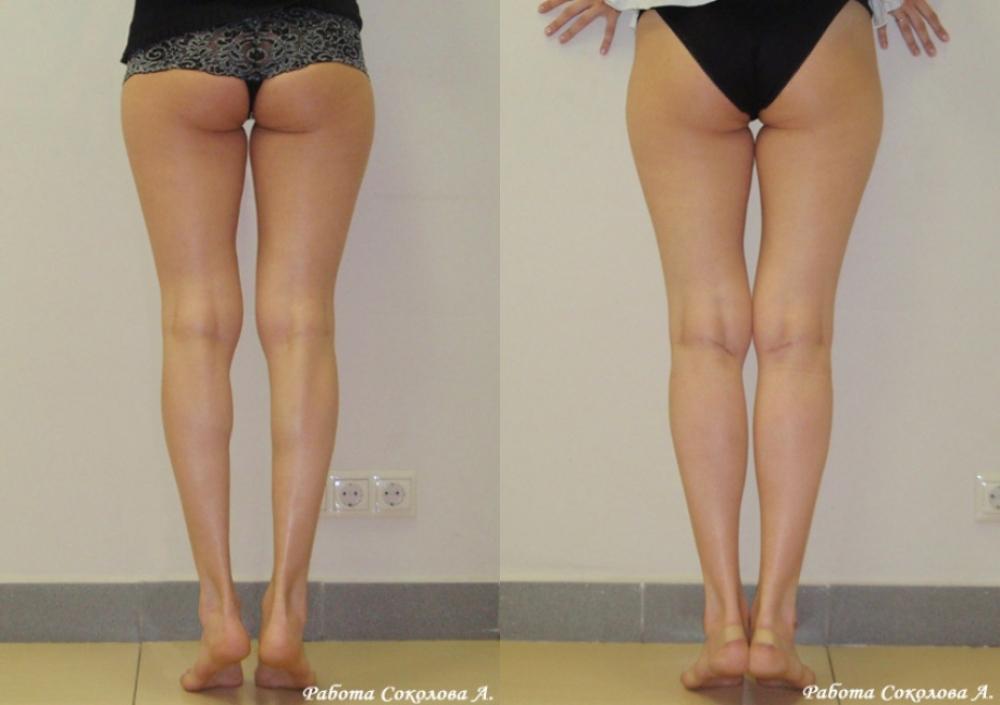 Круропластика у Соколова А. А. фото до и после