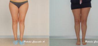 На фото продемонстрирован результат операции по пластики голени спустя шесть месяцев. В ходе пластической операции с помощью симметричных имплантов Eurosilicone объемом 110см3 был увеличен объем голеней.