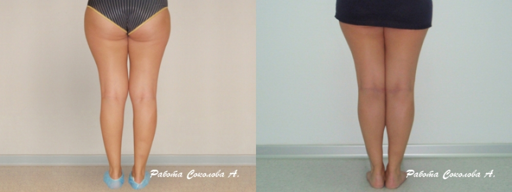 Пластика голеней у Соколова А. А. фото до и после