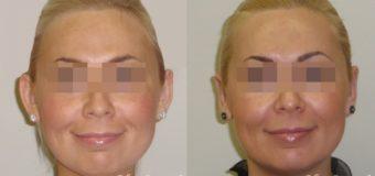 У пациентки наблюдалась оттопыренность ушных раковин, сглаженность противозавитка. Форма ушных раковин врожденная. Была проведена отопластика по Конверсу с применением СО2-лазера. На фото результат пластической операции через три месяца.