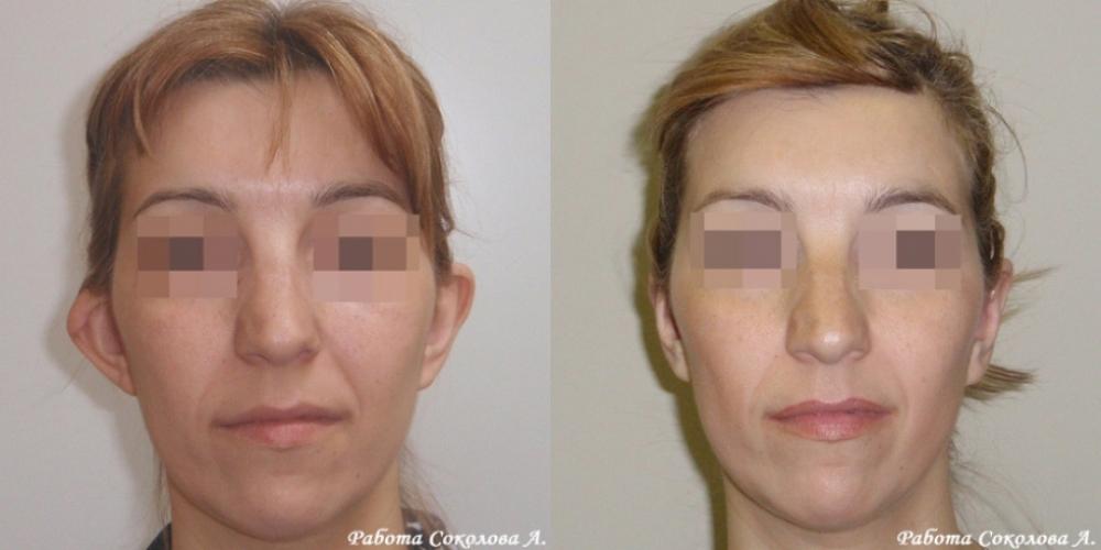 Отопластика с устранением деформации ушной раковины у хирурга Соколова А. А. фото до и после