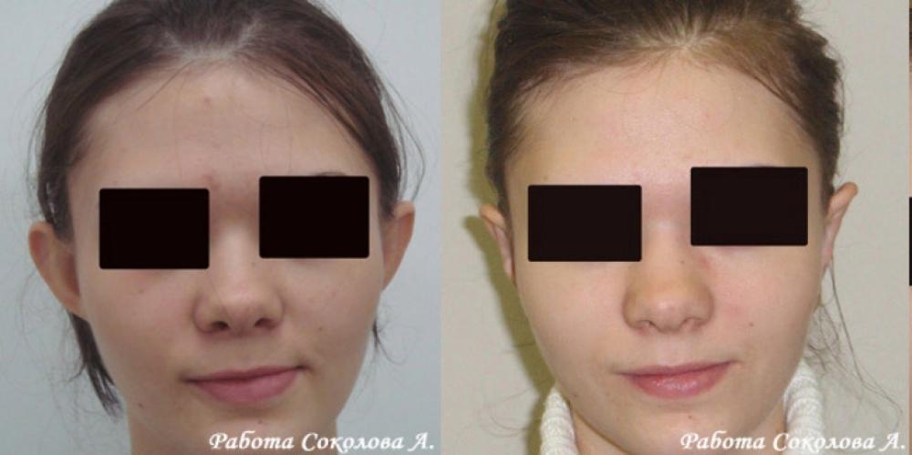 Отопластика у доктора Соколова А. А. фото до и после