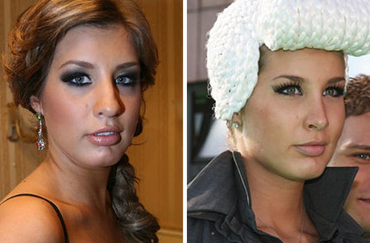 Кети Топурия до и после ринопластики