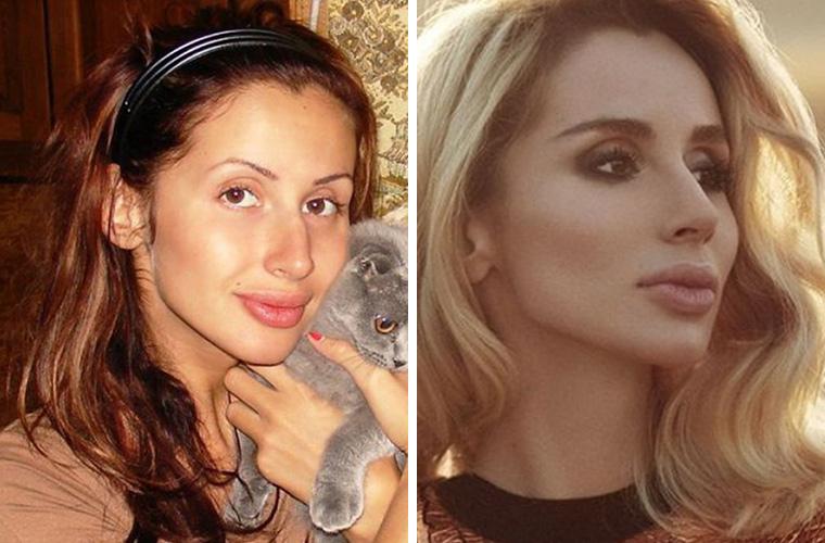 Светлана Лобода до и после ринопластики