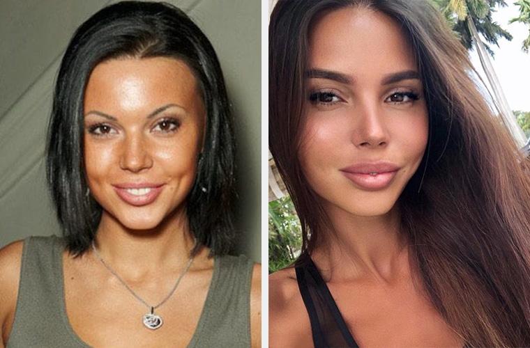 Оксана Самойлова до и после пластики подбородка