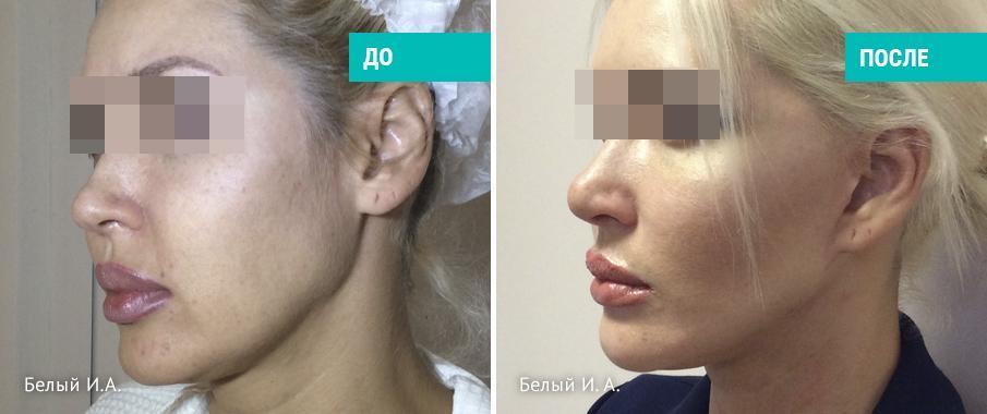 Прима-лифтинг: подтяжка лица с коротким разрезом (хирург Игорь Белый)