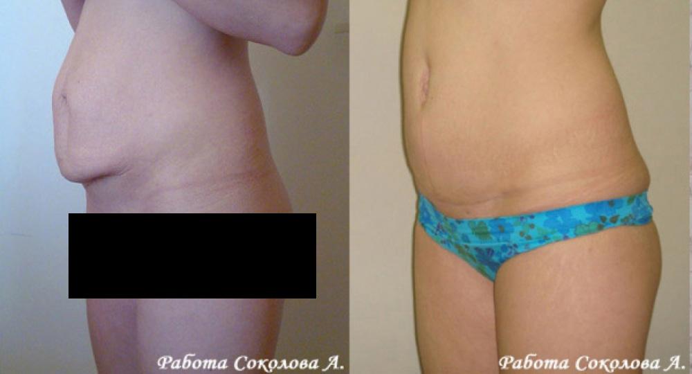 Абдоминопластика с перемещением пупка и устранением диастаза, фото до и после