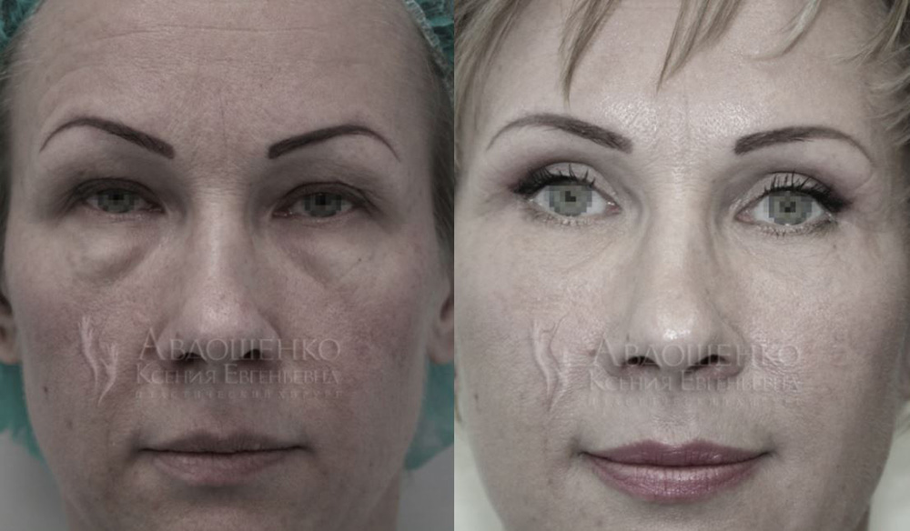 Блефаропластика и чек-лифтинг у пластического хирурга Авдошенко К. Е. фото до и после