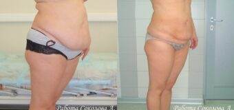 У пациентки наблюдался достаточно большой объем жировых отложений в области живота, спины, талии и бедер. Пластическим хирургом была проведена гипертьюмесцентная липосакция в объеме 7500 миллилитров жировой эмульсии.
