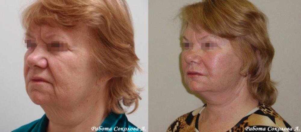 Глубокая подтяжка кожи лица у пластического хирурга Соколова А. А. фото до и после
