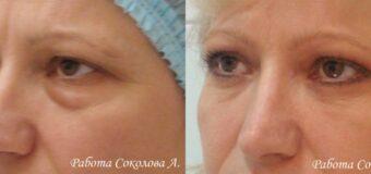 У пациентки 48 лет наблюдались нависание верхних век и выраженные мешки под глазами, которые сильно старили лицо. Пластическим хирургом была выполнена классическая верхняя и нижняя блефаропластика с латеральной кантопексией.