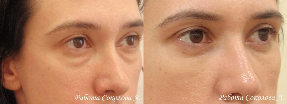 Нижняя трансконьюнктивальная блефаропластика у хирурга Соколова А. А. фото до и после
