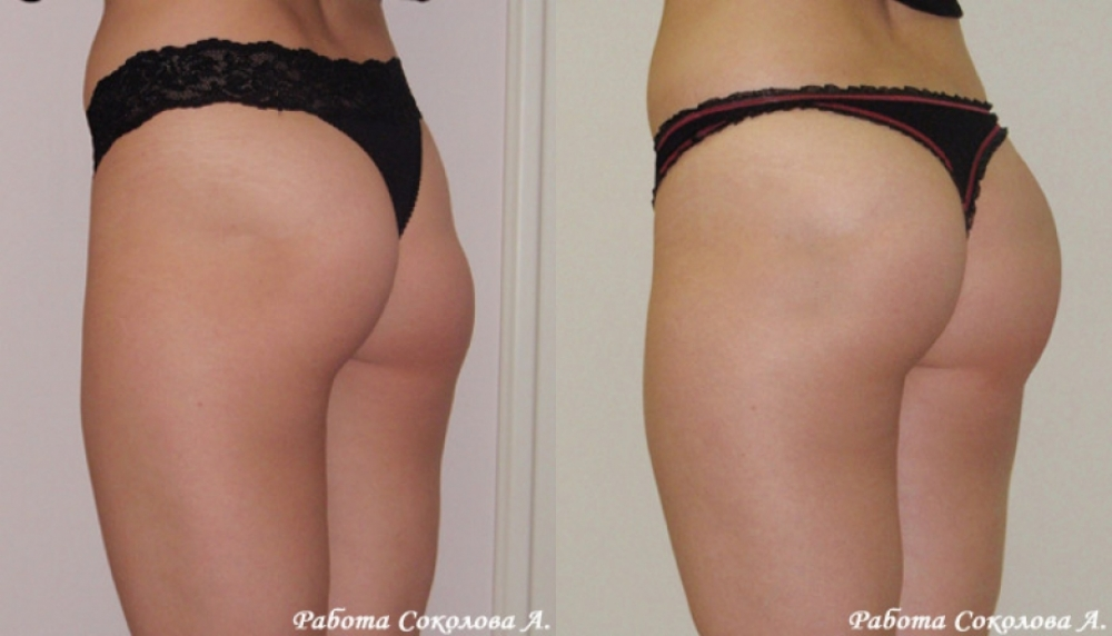Увеличение ягодиц анатомическими имплантатами у Соколова А. А. фото до и после