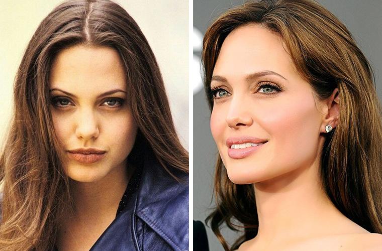 Анджелина Джоли до и после удаления комков Биша