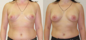Аугментационная маммопластика анатомическими имлантатами Евросиликон (300 куб. см.), установленными под большую грудную мышцу методом создания имплантационного кармана в 2-х плоскостях.