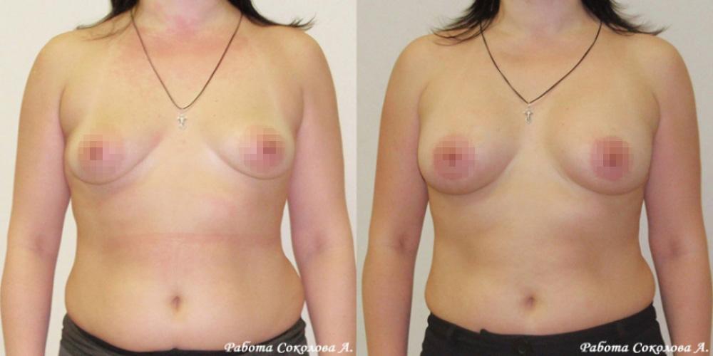 Аугментационная маммопластика анатомическими имлантатами Евросиликон, фото до и после