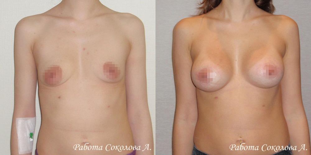 Аугментационная маммопластика через периареолярный доступ, фото до и после