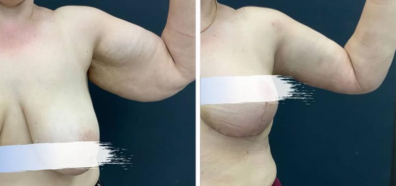 Брахиопластика у пластического хирурга Авдиенко А. А., фото до и после
