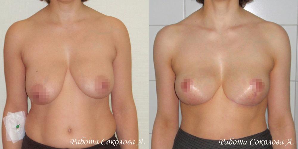 Якорная подтяжка груди у пластического хирурга Соколова А. А., фото до и после