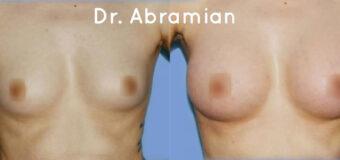 Эндоскопическое увеличение груди: импланты вставлены через проколы в подмышечной области. Размер имплантов — 300 мл.