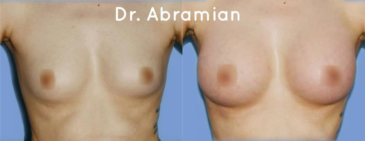 Эндоскопическое увеличение груди имплантами 300 мл, фото до и после