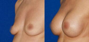 Эндоскопическое увеличение груди (импланты вставлены через проколы в подмышечной впадине). Объем имплантов — 300 мл.