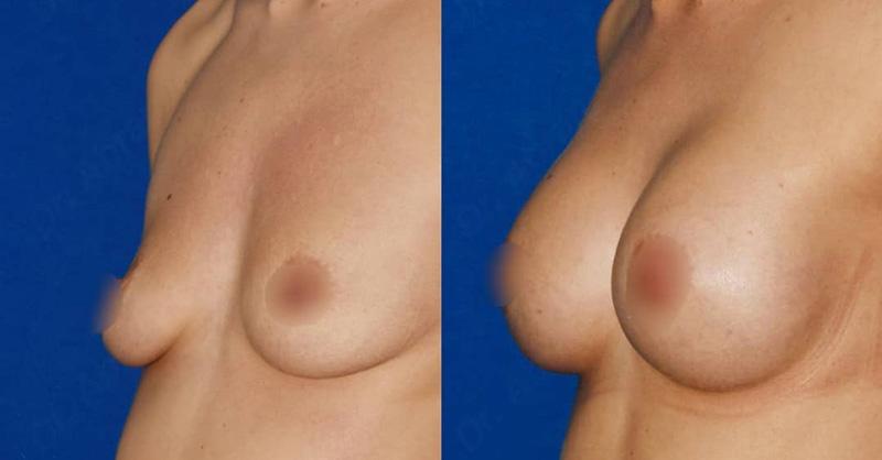 Эндоскопическое увеличение груди у хирурга Абрамяна С. М., фото до и после