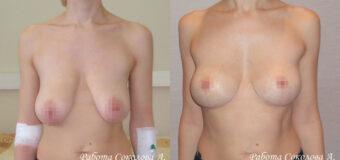 Пациентка обратилась к пластическому хирургу с птозом груди 4 степени. Сосково-ареолярный комплекс находится ниже субмаммарной складки. Для улучшения формы груди была выполнена классическая якорная подтяжка.