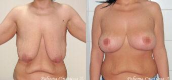 Пациентка (32 года) обратилась к пластическому хирургу с птозом 4 степени и растяжками по всей поверхности груди, которые были вызваны сильными колебаниями веса. Была проведена классическая мастопексия с якорным разрезом.