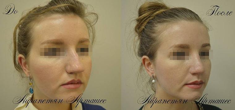 Коррекция посттравматической деформации носа, фото до и после