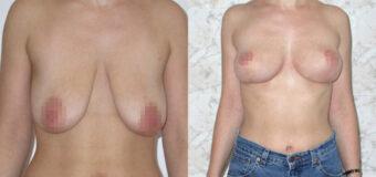 Операция мастопексия, в ходе которой были удалены избытки растянутой кожи, а сосково-ареолярный комплекс перемещен вверх.