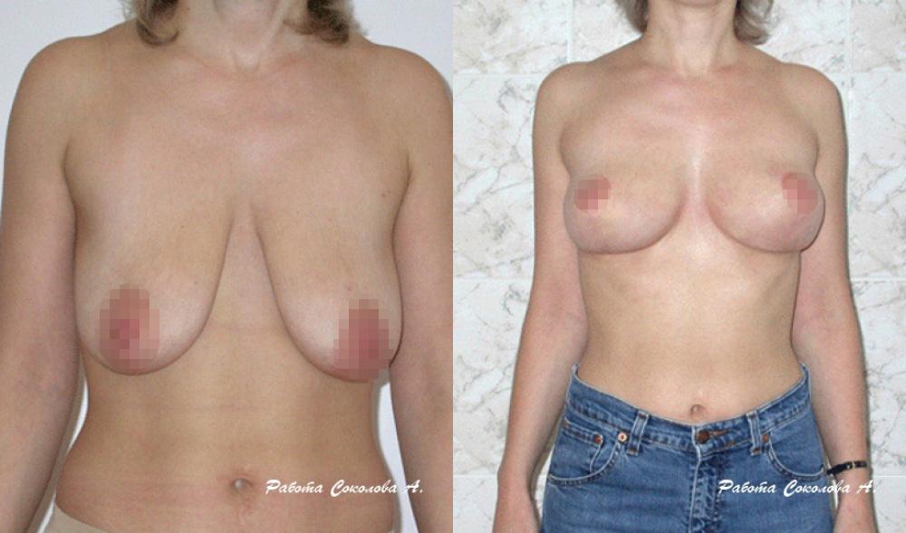 Мастопексия у пластического хирурга Соколова А. А., фото до и после