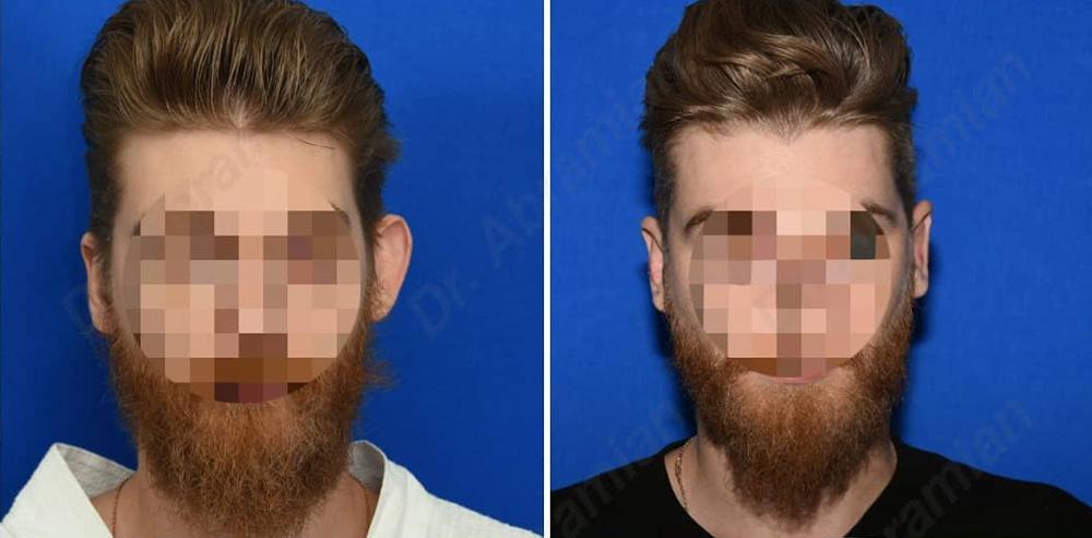 Односторонняя отопластика у доктора Абрамяна С. М., фото до и после