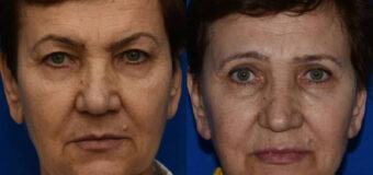 Подтяжка лица и круговая блефаропластика