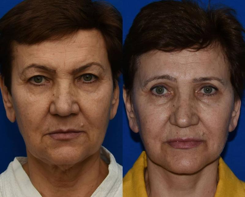 Подтяжка лица и круговая блефаропластика, фото до и после