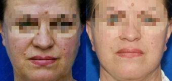 Пациентке была выполнена подтяжка лица со SMAS лифтингом и платизмапластика (подтяжка шеи).
