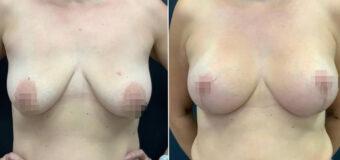 Подтяжка груди с имплантами Polytech объемом 255 мл. На фото — результат пластики через два месяца после операции. Рубцы будут незаметны примерно через полгода.