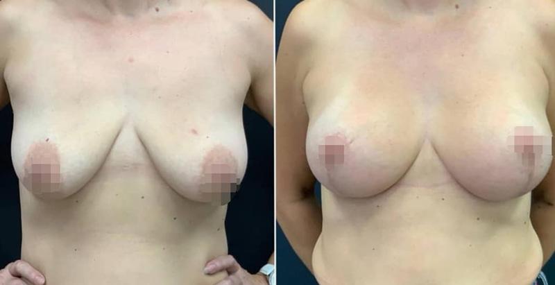 Подтяжки груди с имплантами, фото до и после