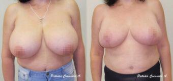 Пациентка обратилась к пластическому хирургу с просьбой уменьшить грудь. Помимо эстетического дискомфорта, большая грудь (7-8 размер до операции) была причиной болей в спине. Хирургом была проведена редукционная маммопластика, в процессе которой грудь была уменьшена до комфортного 3-4 размера.
