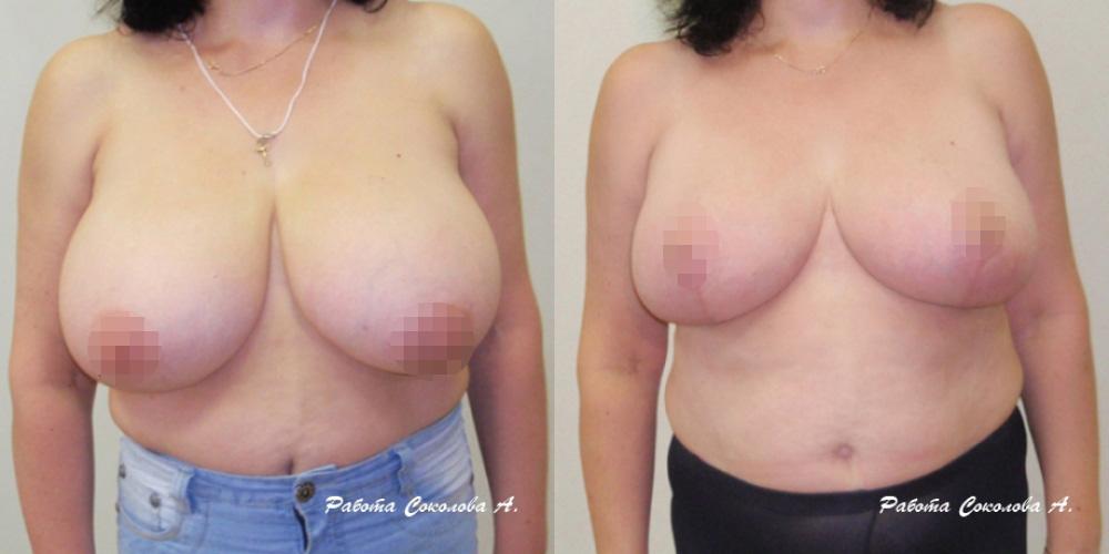 Редукционная маммопластика у хирурга Соколова А. А., фото до и после