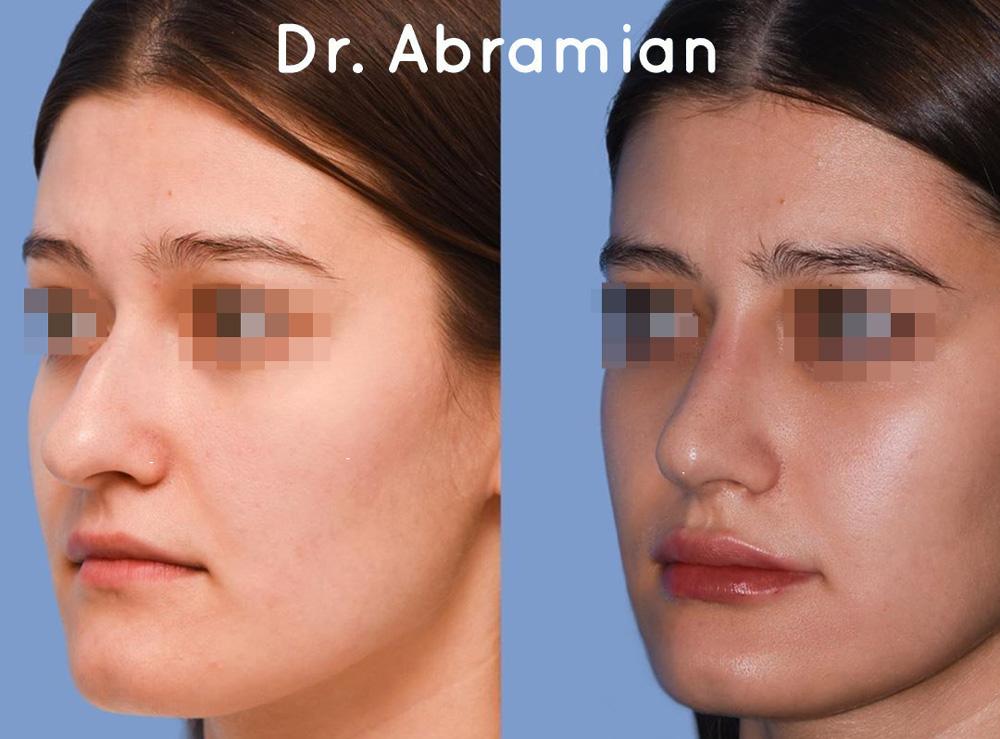 Ринопластика у доктора Абрамяна, фото до и после