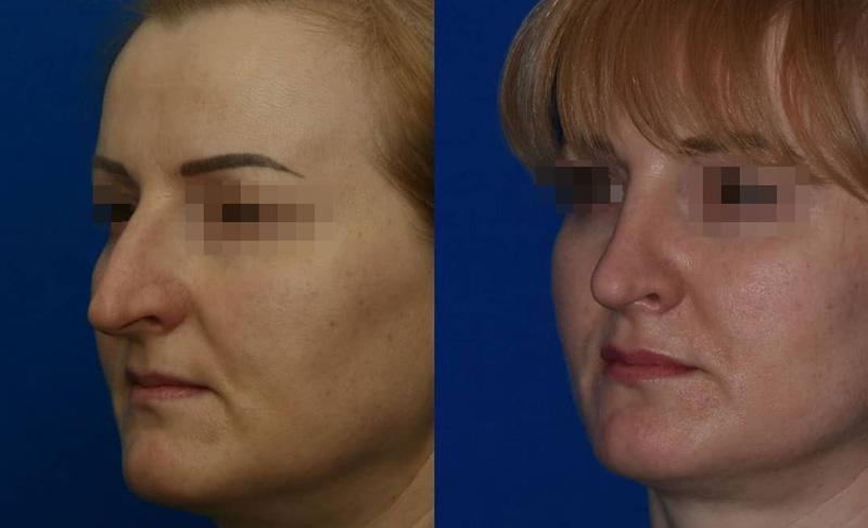 Ринопластика у хирурга Абрамяна С. М., фото до и после