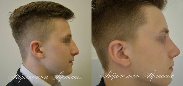 Риносептопластика при посттравматической деформации носа, фото до и после