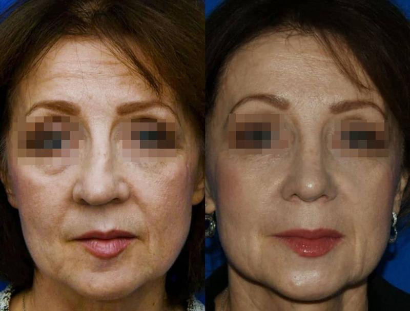 Риносептопластика у пластического хирурга Абрамяна С. М., фото до и после