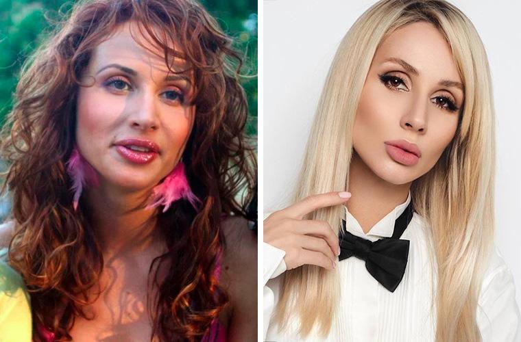 Светлана Лобода до и после удаления комков Биша