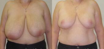 Пациентка обратилась к пластическому хирургу с просьбой уменьшить размер груди. Женщина жаловалась на эстетический дискомфорт, боли в спине, проблемы с выбором одежды.  Была проведена редукционная маммопластика.